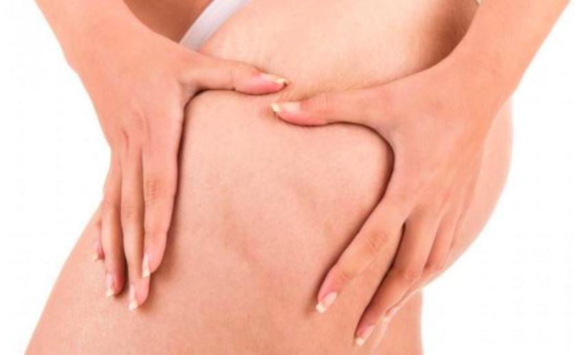 meilleure huile anti cellulite efficace : avis et tests